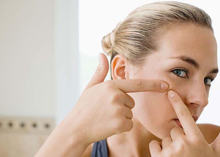 Die besten Tabletten und Cremes gegen Akne. Wirksame Präparate gegen Pickel – Ranking der Produkte